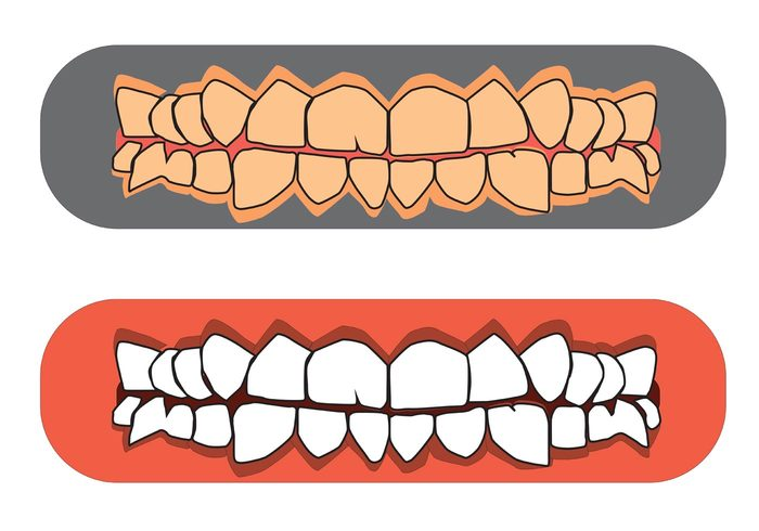 Free Teeth and Gums Vectors