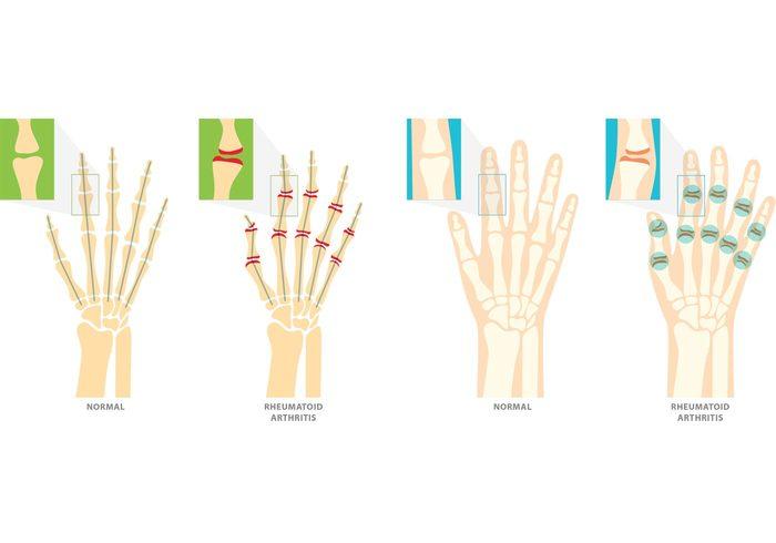 Rheumatoid Arthritis Vector Symbols