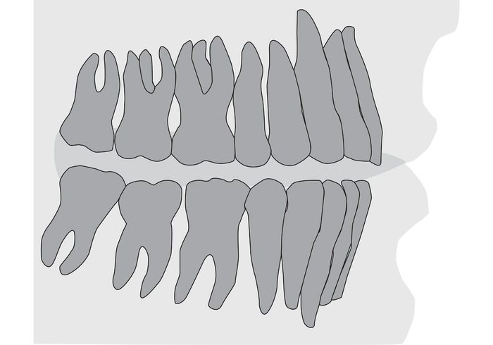 Teeth and Gums Xray